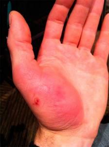 Ушиб пальца на руке: что делать в домашних условиях