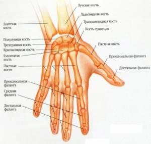 Перелом боксера (пятой пястной кости)