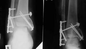 Двухлодыжечный перелом голени