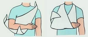 Вывих локтевого сустава: первая помощь и восстановление