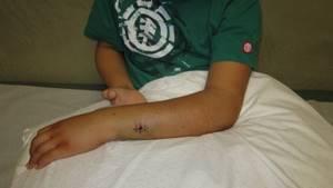 Перелом лучевой кости руки со смещением: лечение, срок срастания