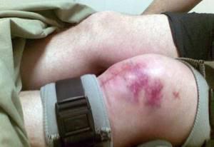 Перелом коленного сустава: симптомы, лечение, реабилитация