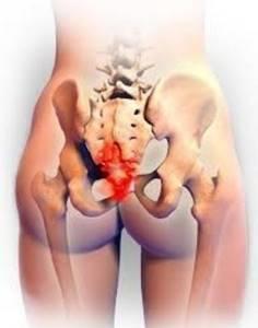Перелом копчика: симптомы и последствия, сколько заживает