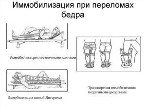 Вколоченный перелом шейки бедра: симптомы и лечение