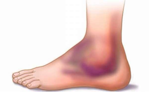 Гематома на ноге после ушиба: лечение, причины