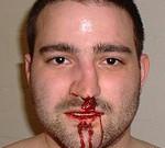 Перелом носа: признаки, симптомы, лечение, первая помощь