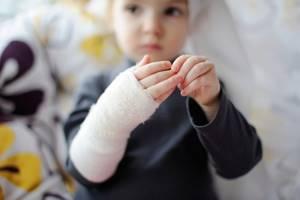 Перелом кисти руки: симптомы, лечение, сколько дней гипс