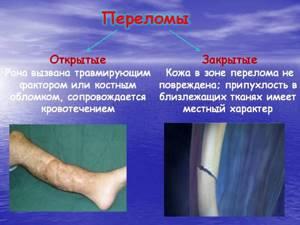 Открытый перелом: признаки, классификация, лечение