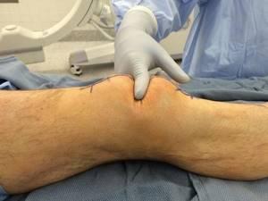 Перелом надколенника (коленной чашечки): лечение, последствия, реабилитация