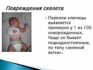 Перелом ключицы у новорожденного при родах