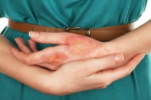 Химический ожог кожи: лечение в домашних условиях