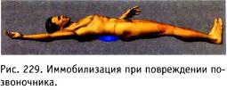 Иммобилизация при переломах костей (алгоритм)