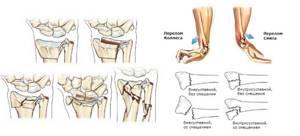 Перелом запястья руки: сколько носить гипс