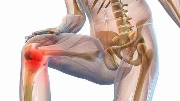 Вывих коленного сустава: лечение в домашних условиях