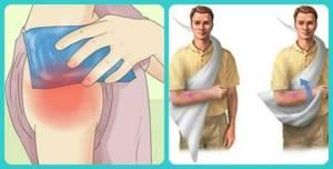 Привычный вывих плеча: лечение без операции