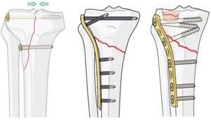 Перелом голени: операция с пластиной, реабилитация, сколько ходить в гипсе