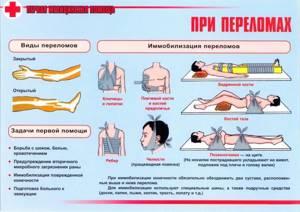 Что такое закрытый перелом: признаки, первая помощь, лечение