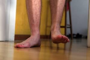 Ушиб пятки после прыжка: как лечить