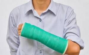Консолидированный перелом: что это такое