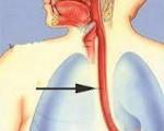 Ожог пищевода: симптомы, лечение