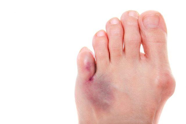 Перелом пальца на ноге: что делать, как быстро вылечить