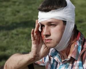 Травматический шок: виды шока, симптомы, первая помощь и лечение