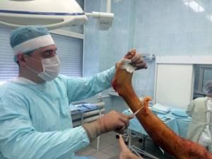 Перелом лодыжки со смещением: операция с пластиной, реабилитация