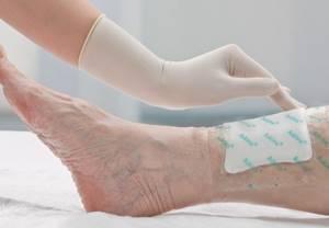 Заживление ран: как заживают раны и как ускорить срастание тканей