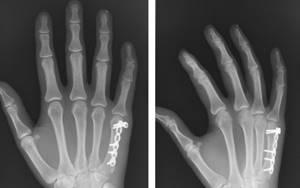 Перелом пальца на руке: признаки, лечение, реабилитация