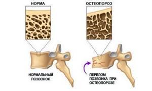 Что такое компрессионный перелом позвоночника: симптомы, лечение, последствия