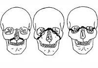 Перелом верхней челюсти: симптомы, лечение