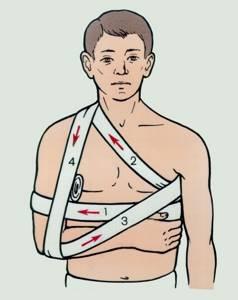 Вывих ключицы: симптомы и лечение