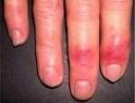 Обморожение: причины, симптомы, первая помощь