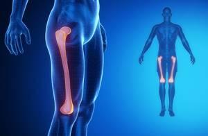 Перелом ноги: признаки, сколько ходить в гипсе