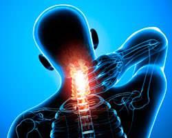 Подвывих атланта (позвонка С1): симптомы и лечение