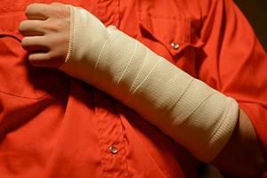Перелом руки: признаки, симптомы, лечение