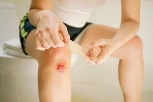 Ушиб колена при падении: лечение в домашних условиях