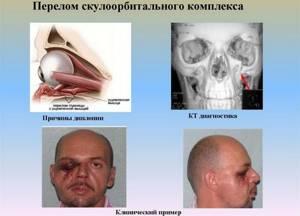 Перелом глазницы (орбиты глаза): последствия