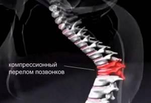 Как лечить компрессионный перелом поясничного отдела позвоночника