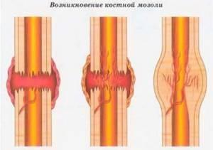 Костная мозоль после перелома