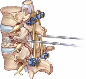Перелом позвоночника: симптомы, лечение и реабилитация