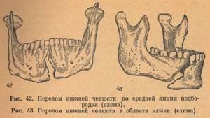 Перелом нижней челюсти: лечение, классификация