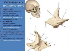Перелом скуловой кости: лечение, последствия