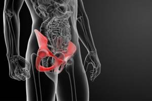 Перелом седалищной кости: лечение, последствия, реабилитация