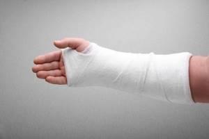 Перелом предплечья: симптомы, лечение, реабилитация
