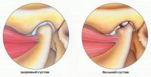 Вывих челюсти: симптомы и лечение