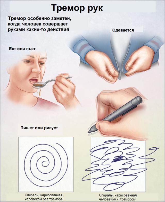 Тремор рук: причины, диагностика, лечение