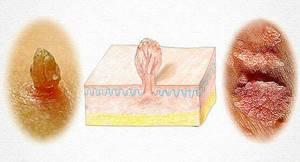 Кондиломы у женщин: остроконечные, плоские. Почему возникают, как лучше удалять, как они выглядят