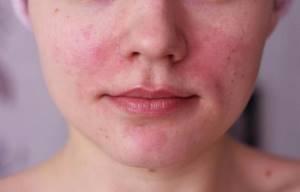Причины нездорового цвета кожи лица: желтый, землистый, оливковый, серый, бледный, красный