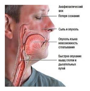 Анафилактический шок: симптомы, первая помощь, последствия, профилактика